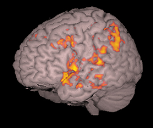 fMRI shows the brain's passivity center
