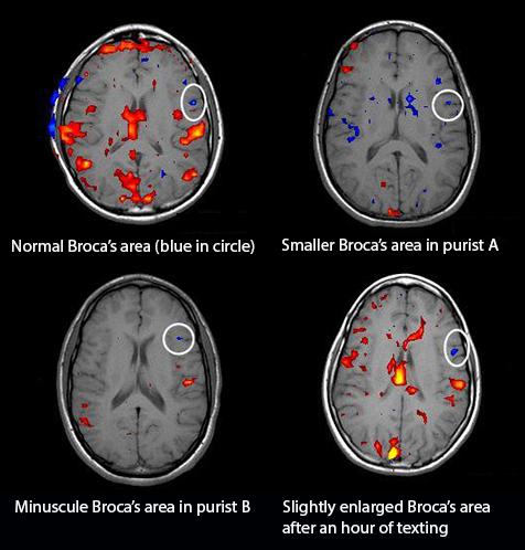 fMRI scans of grammar obsessives