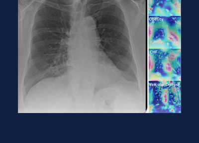 lung x-ray photos provided by the Coordinated Sciences Lab