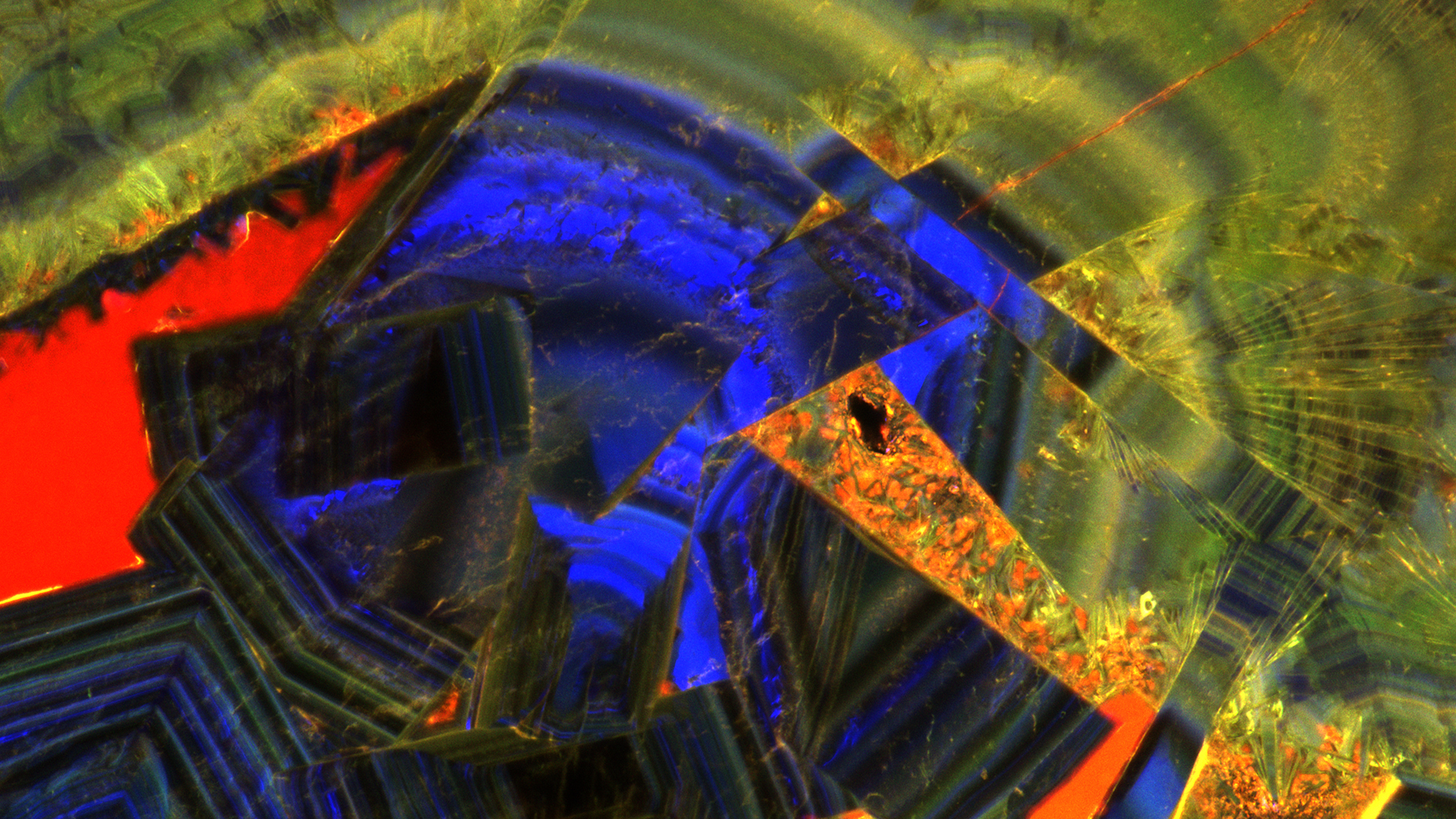 A fluorescent microscope image of a thin section of a human kidney stone reveals a complex history of crystal growth layering, fracturing, dissolution and recrystallization.  Image courtesy of Mayandi Sivaguru