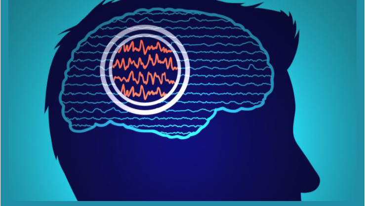 brain activity graphic provided by the Coordinated Sciences lab