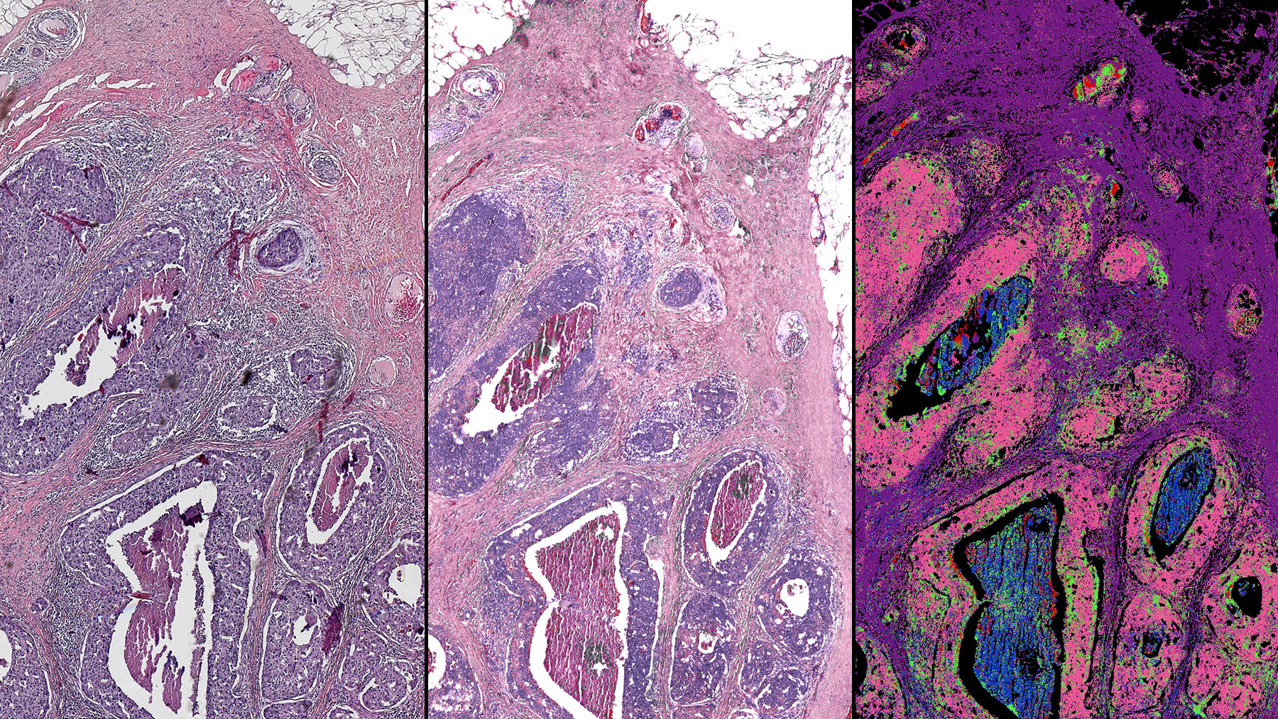 This side-by-side comparison of a breast tissue biopsy demonstrates some of the infrared-optical hybrid microscope's capabilities. Images courtesy of Rohit Bhargava