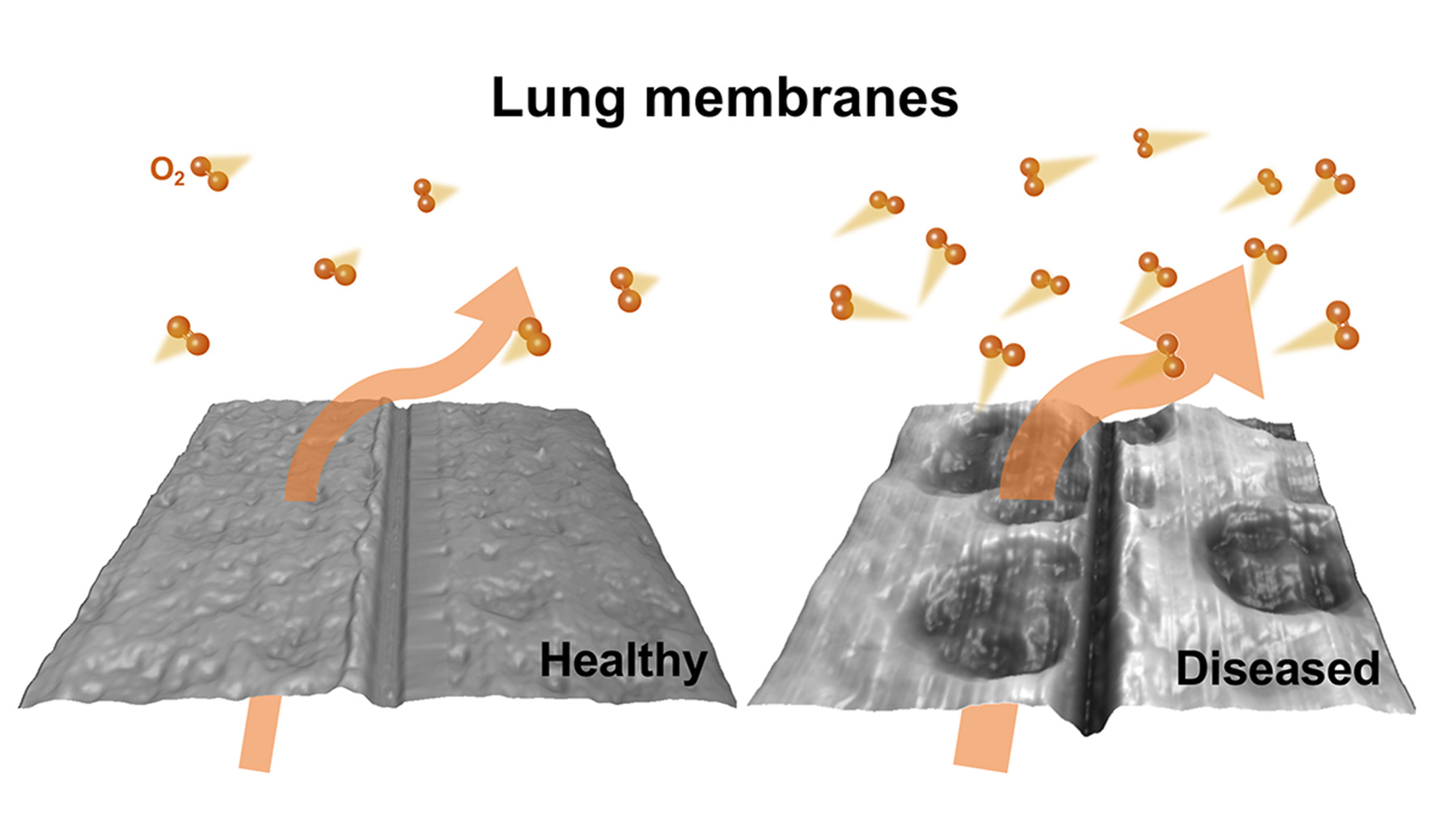 New research from engineers at the University of Illinois at Urbana-Champaign shows how oxygen transfer is altered in diseased lung tissue.  Graphic by Mijung Kim and Marilyn Porras-Gomez
