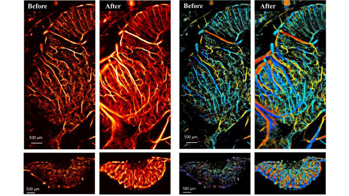 Ultrasound images of chicken embryo brains and tumors before and after microbubble separation processing.