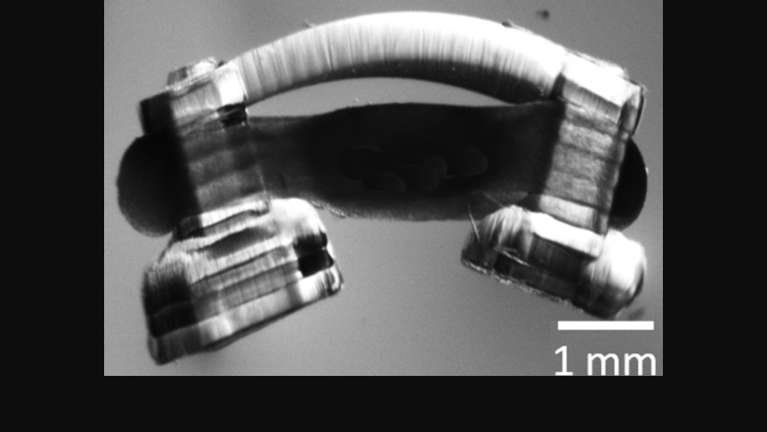 Image of a bio-bot. The dark section between the two legs is a ring of muscle and spinal cord that moves the bio-bot and is connected to the skeleton. (Courtesy: Collin Kaufman, University of Illinois)