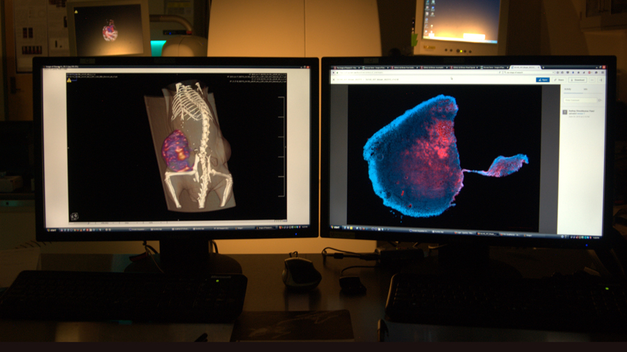 sample of probe results shown on computer screens at the Cancer Center at Illinois