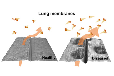 New research from engineers at the University of Illinois at Urbana-Champaign shows how oxygen transfer is altered in diseased lung tissue.